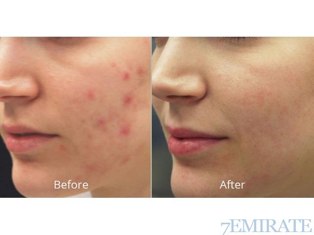 Skin care treatment laser Abu Dhabi the best clinic