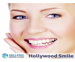 Veneers Hollywood Smile Treatment in Dubai, UAE - Hellenic Dental Clinic