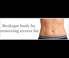 Liposuction Surgery in Dubai