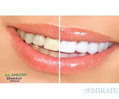 Keep Your Smile Shining with Teeth Whitening